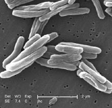 Tuberculosis deaths rising worldwide, report says